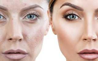 Подкожный клещ на лице – причины появления, симптомы и лечение с фото и видео