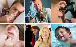 Что делать если заложило ухо в домашних условиях и куда обратиться