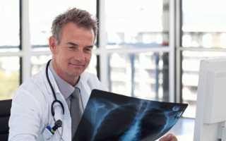 Торакальный хирург – при каких заболеваниях показана консультация и какие органы оперирует