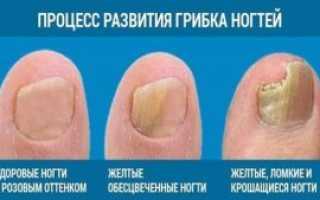 Средства от запущенного грибка ногтей: как правильно выбрать препарат отзывы о лекарствах