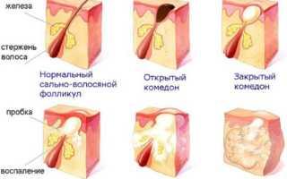 Как избавиться от подкожных прыщей на лице: лечение