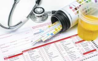 Кетоновые тела в моче – причины повышенного содержания в анализе, норма и лечение