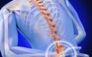 Серонегативный спондилоартрит – симптомы, медикаментозная терапия, народные средства и прогноз на жизнь