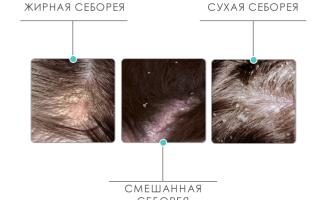 Себорейный дерматит волосистой части головы: лечение в домашних условиях