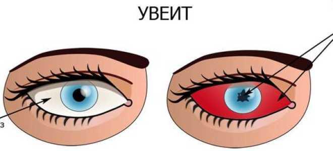 Опасны ли уколы в глаза человека, препараты для лечения