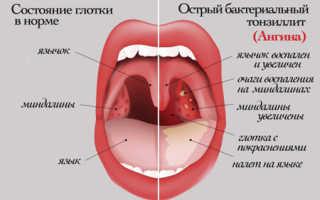 Чем полоскать горло при боли и ангине в домашних условиях