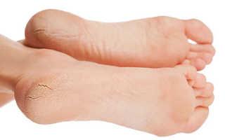 Трещины на пятках – причины появленияния и лечение в домашних условиях