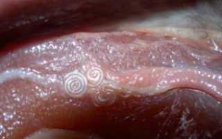 Нематоды у человека – симптомы, профилактика и лечение препаратами