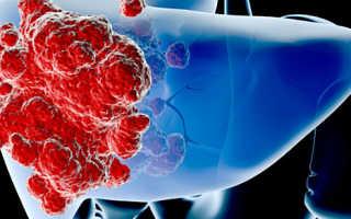 Восстановление печени после химиотерапии: препараты, народные средства, питание