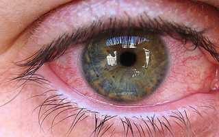 Паразиты в глазах человека – симптомы заражения