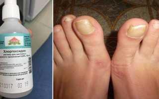 Хлоргексидин от грибка – использование для обработки ног и обуви, меры предосторожности и отзывы