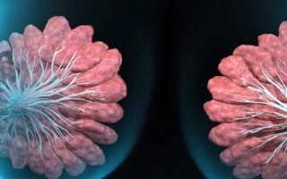 Мастопатия молочной железы – что это такое, виды, первые признаки, проявления и лекарственная терапия