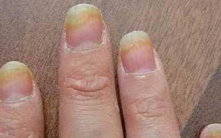 Заболевания ногтей на руках: как определить и лечить