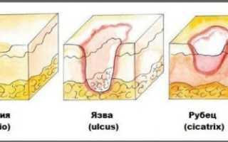 Эрозия желудка – симптомы и лечение заболевания