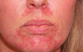 Виды дерматита у взрослых и детей – как выглядят проявления, причины и лечение