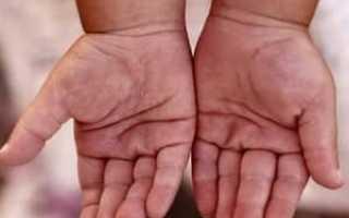 Облазит кожа на пальцах рук у ребенка и взрослого, причины отслоения