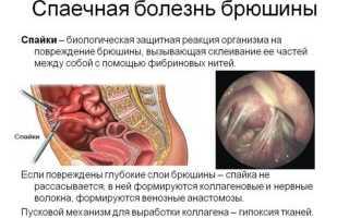 Упражнения при спайках кишечника – обзор популярных методик с описанием
