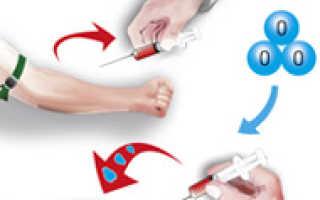 Переливание крови из вены в ягодицу: схема, показания и противопоказания, отзывы