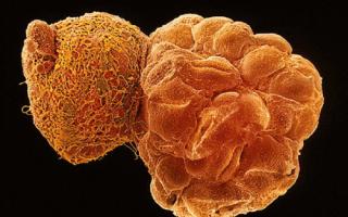 Бластоцисты в кале у взрослого – симптомы и лечение бластоцистоза кишечника