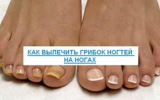 Чем лечить грибок ногтей на ногах: народные средства и препараты, отзывы