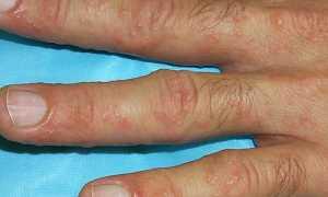 Дисгидроз кистей рук – лечение в домашних условиях мазями и диетой