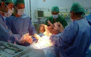 Кесарево сечение – методики и описание операции, анестезия, возможные осложнения и реабилитация