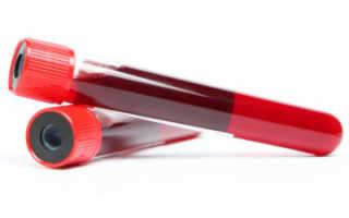 Д-димер – что это: показатели при анализе крови у женщин