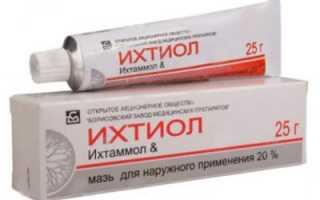 Лекарство от варикоза – самые эффективные таблетки, гели, мази и крема