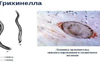 Жизненный цикл трихинеллы: размер, форма и схема развития червя, как можно заразиться Trichinella spiralis