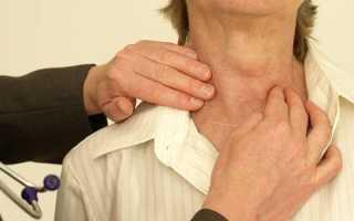 Гипотиреоз щитовидной железы у женщин: симптомы, лечение и диета
