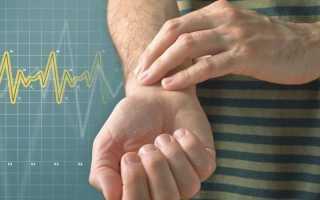 Высокий пульс при нормальном давлении – что делать и как снизить, причины и лечение тахикардии