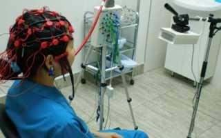 ЭЭГ – что это такое за обследование, что показывает и как расшифровать результаты ребенка или взрослого