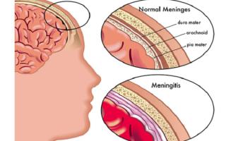 Как передается менингит бактериальный, вирусный или туберкулезный – инфицирование и профилактика