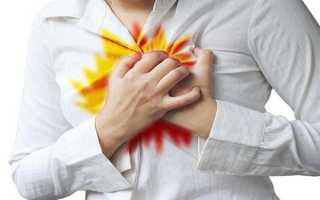 Изжога – причины возникновения, как лечить