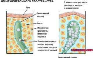 Лимфостаз – что это такое, как лечить заболевание