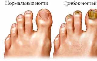 Как вылечить грибок ногтей на ногах в домашних условиях народными средствами