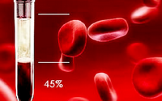 Гематокрит – что это такое, выявление и определение степени анемии у детей и взрослых