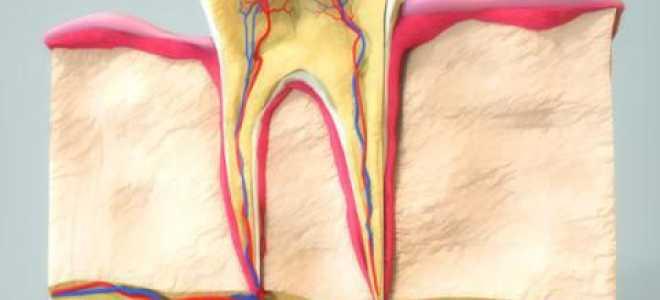 Как убить нерв в зубе в домашних условиях: проверенные лекарства