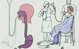 Промывание желудка: техника проведения лечебной процедуры для взрослых и детей в больнице и в домашних условиях