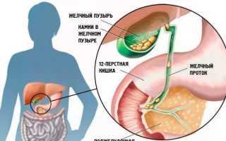 Желчегонные средства при застое желчи: эффективные народные, таблетки