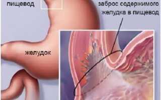 Лечение эрозии пищевода медикаментами – обзор лекарственных средств с описанием