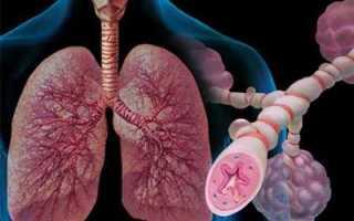 Причины отдышки при нагрузке, лечение народными средствами и препаратами