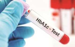 Гликированный гемоглобин: норма при диабете, что показывает анализ