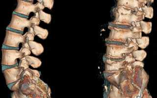 Уколы при остеохондрозе поясничного отдела внутримышечные и внутривенные – список самых эффективных