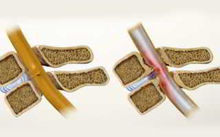 Стеноз – что это такое за заболевание, проявления и признаки, консервативная и оперативная терапия
