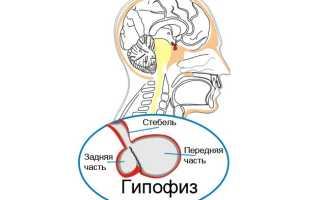 Микроаденома гипофиза: признаки и последствия