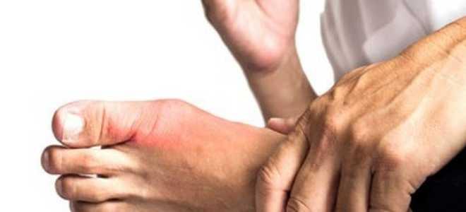 Подагра у мужчин – признаки, опасные последствия, что провоцирует обострение и методы терапии
