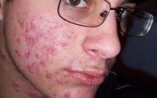 Угревая сыпь на лице: причины и лечение прыщей