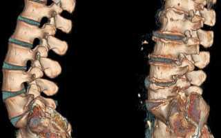 Слабость в ногах и головокружение – причины и лечение симптомов ВСД или остеохондроза