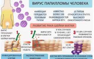 Вирус папилломы человека – признаки инфекции у мужчин и женщин, анализы для диагностики и лечение